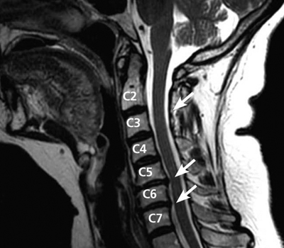 MRI of Cervical Disk Bulge